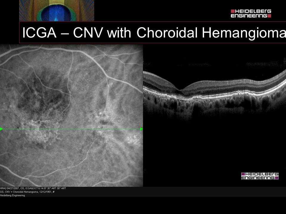 ICGA – CNV with Choroidal Hemangioma