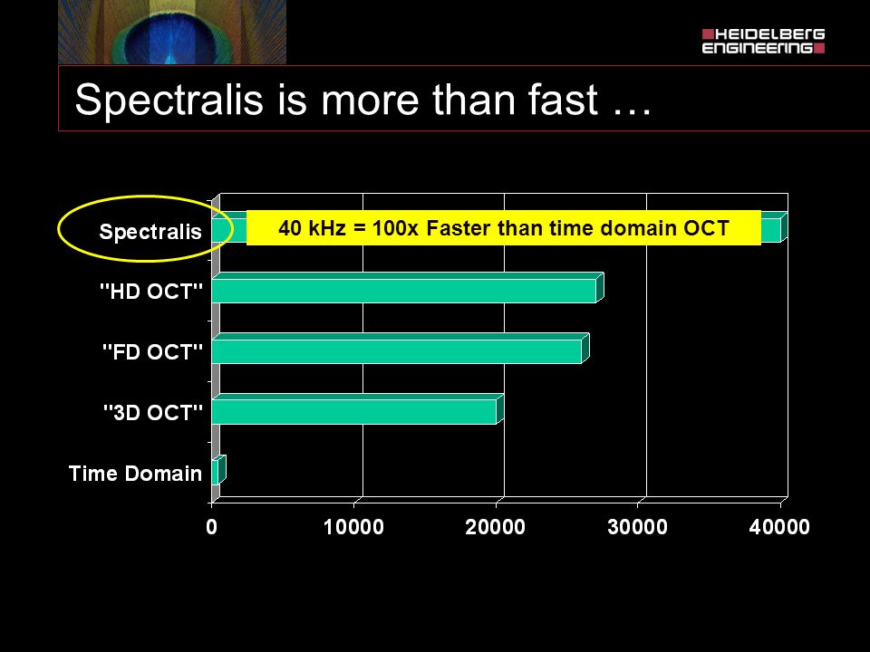 Spectralis is more than fast … 40 kHz = 100x Faster than time domain OCT