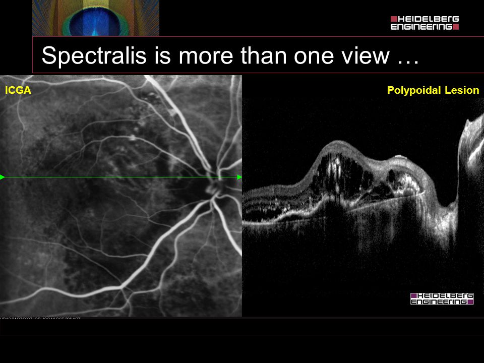 Spectralis is more than one view … ICGAPolypoidal Lesion