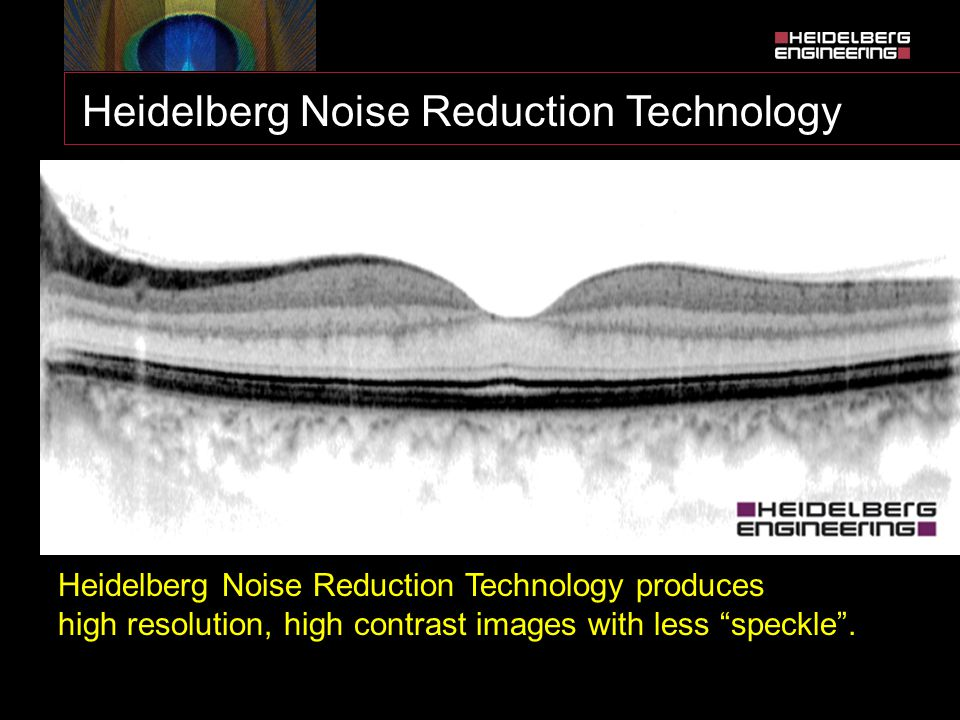 """Heidelberg Noise Reduction Technology  Multiple images are captured at the same location  """"Noise"""" is identified as points not common to the set of i"""