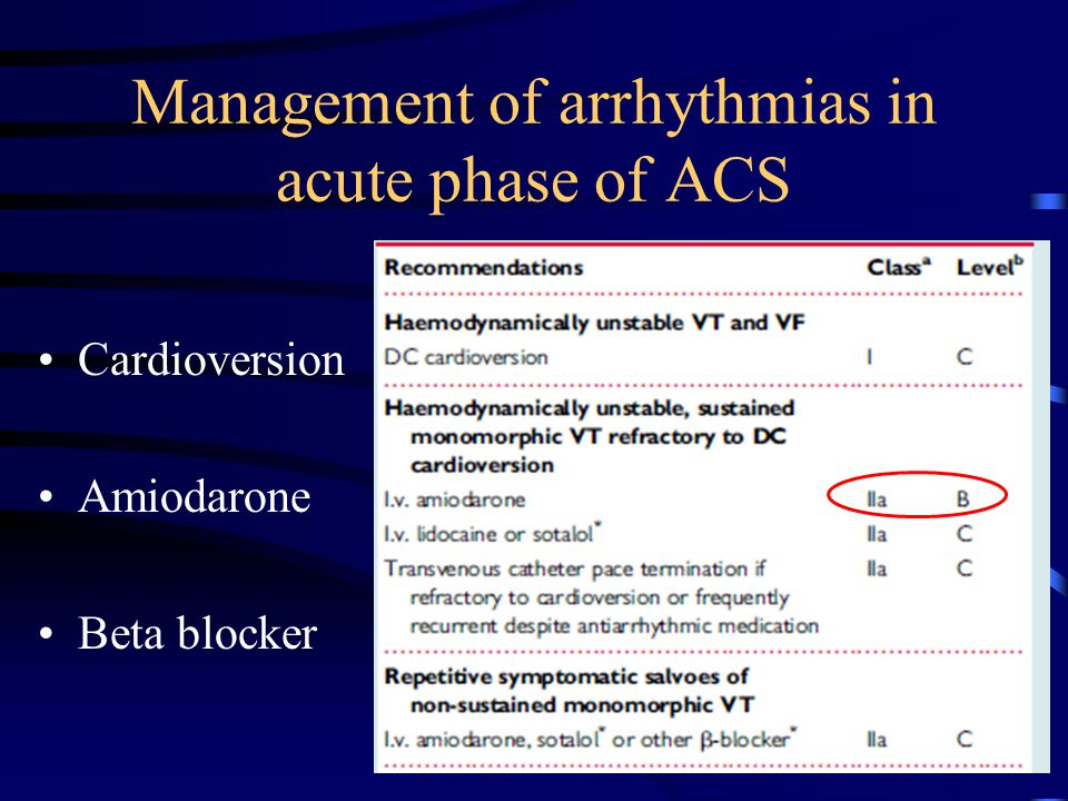 Management of arrhythmias in acute phase of ACS Cardioversion Amiodarone Beta blocker
