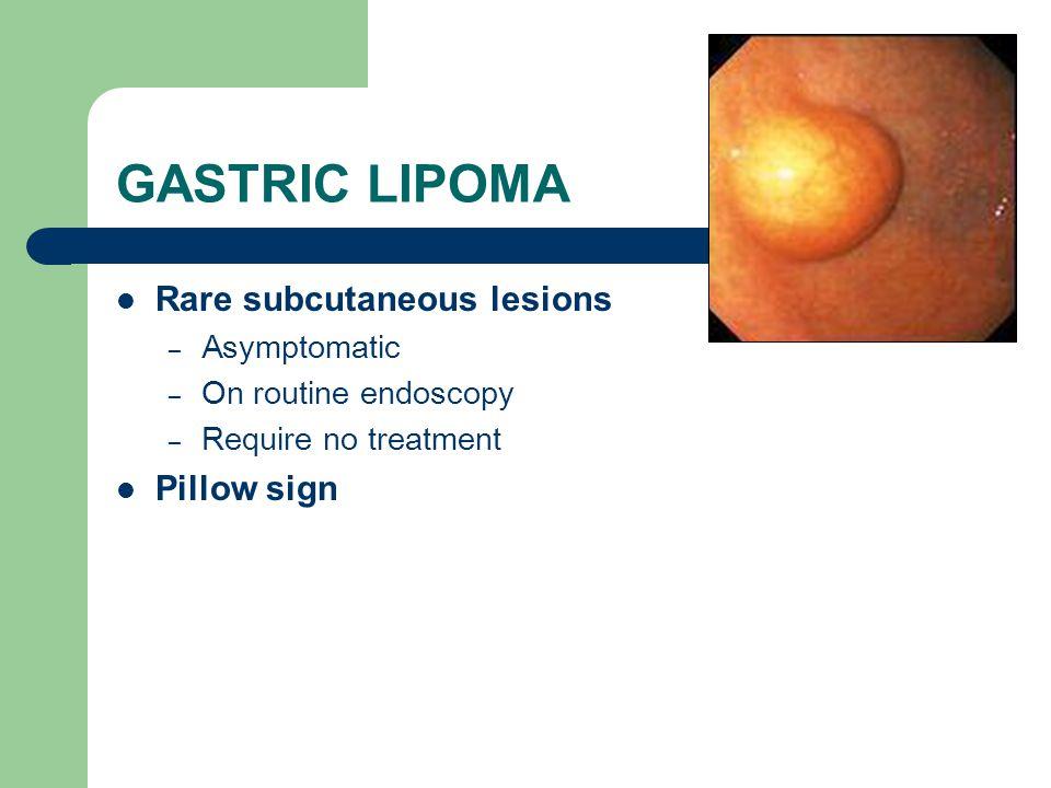 GASTRIC LIPOMA Rare subcutaneous lesions – Asymptomatic – On routine endoscopy – Require no treatment Pillow sign