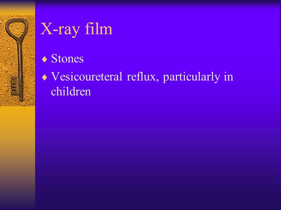 X-ray film  Stones  Vesicoureteral reflux, particularly in children