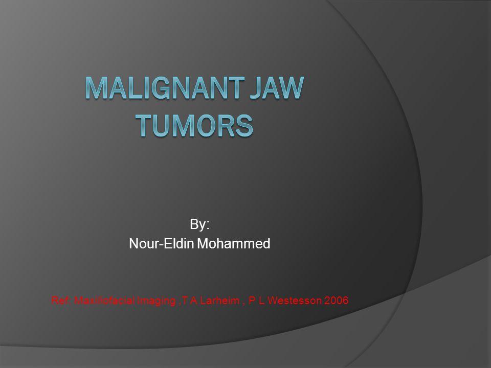 By: Nour-Eldin Mohammed Ref: Maxillofacial Imaging,T A Larheim, P L Westesson 2006