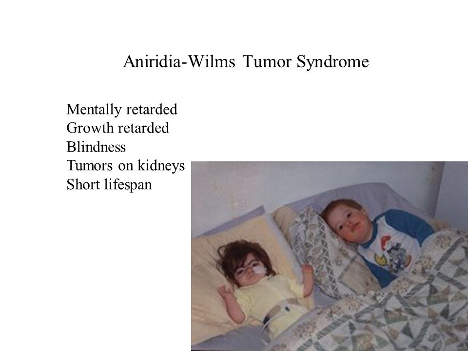 Aniridia-Wilms Tumor Syndrome Mentally retarded Growth retarded Blindness Tumors on kidneys Short lifespan