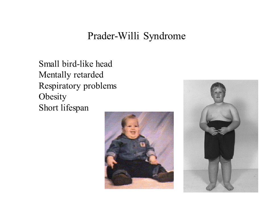 Prader-Willi Syndrome Small bird-like head Mentally retarded Respiratory problems Obesity Short lifespan