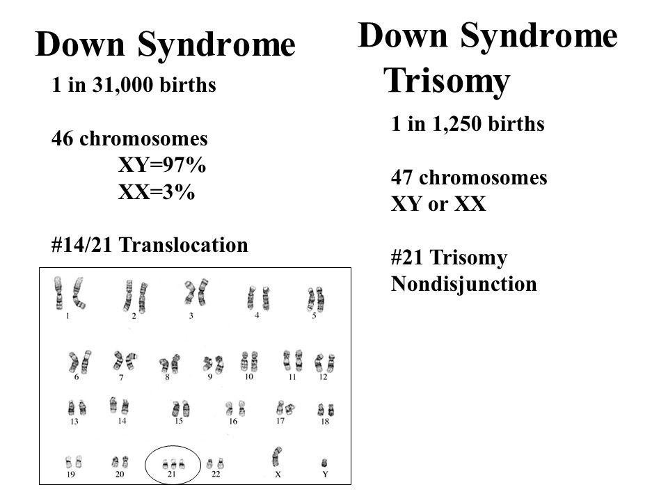 Down Syndrome 1 in 31,000 births 46 chromosomes XY=97% XX=3% #14/21 Translocation 1 in 1,250 births 47 chromosomes XY or XX #21 Trisomy Nondisjunction