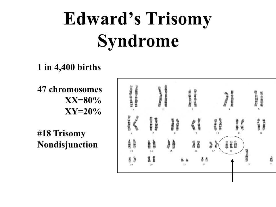 Edward's Trisomy Syndrome 1 in 4,400 births 47 chromosomes XX=80% XY=20% #18 Trisomy Nondisjunction