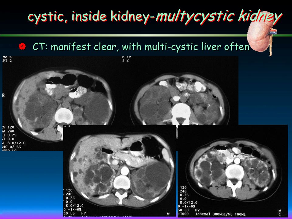  BUS: renal enlargement of both sides with multi-cyst ~ diagnosed cystic, inside kidney- multycystic kidney