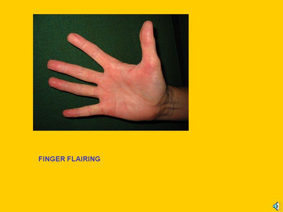 FINGER FLAIRING
