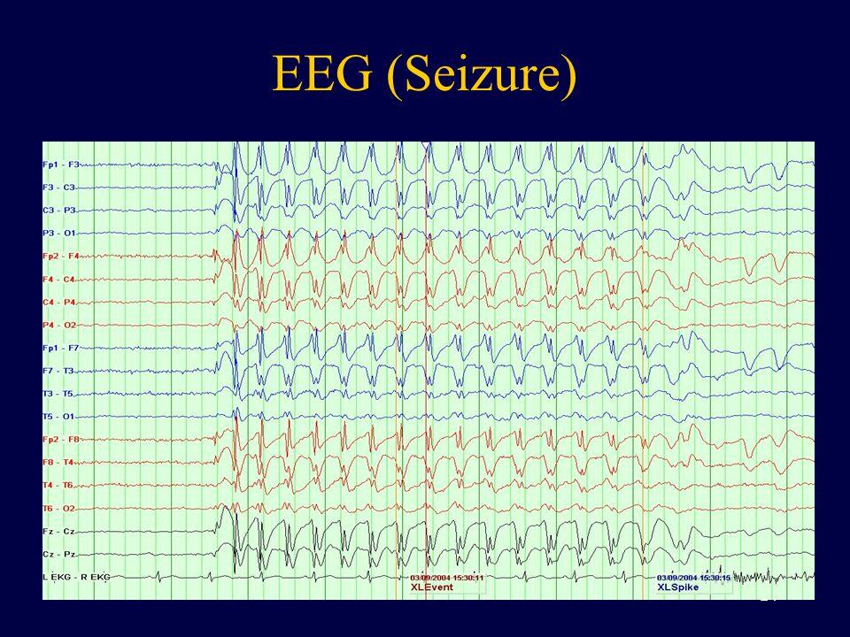 EEG (Seizure) 24