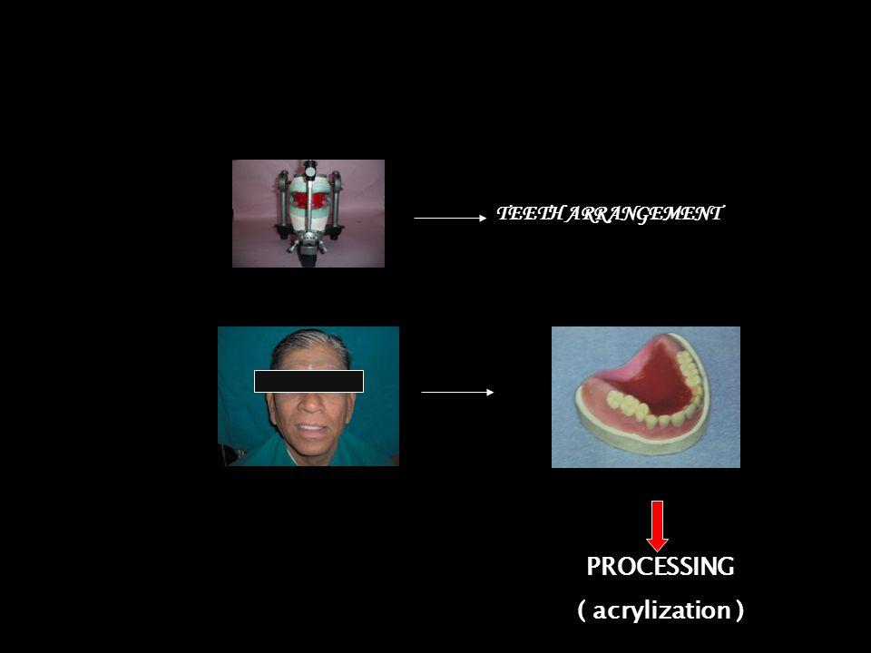 PROCESSING ( acrylization ) TEETH ARRANGEMENT