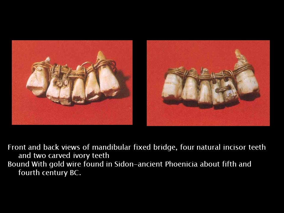 Front and back views of mandibular fixed bridge, four natural incisor teeth and two carved ivory teeth Bound With gold wire found in Sidon-ancient Phoenicia about fifth and fourth century BC.