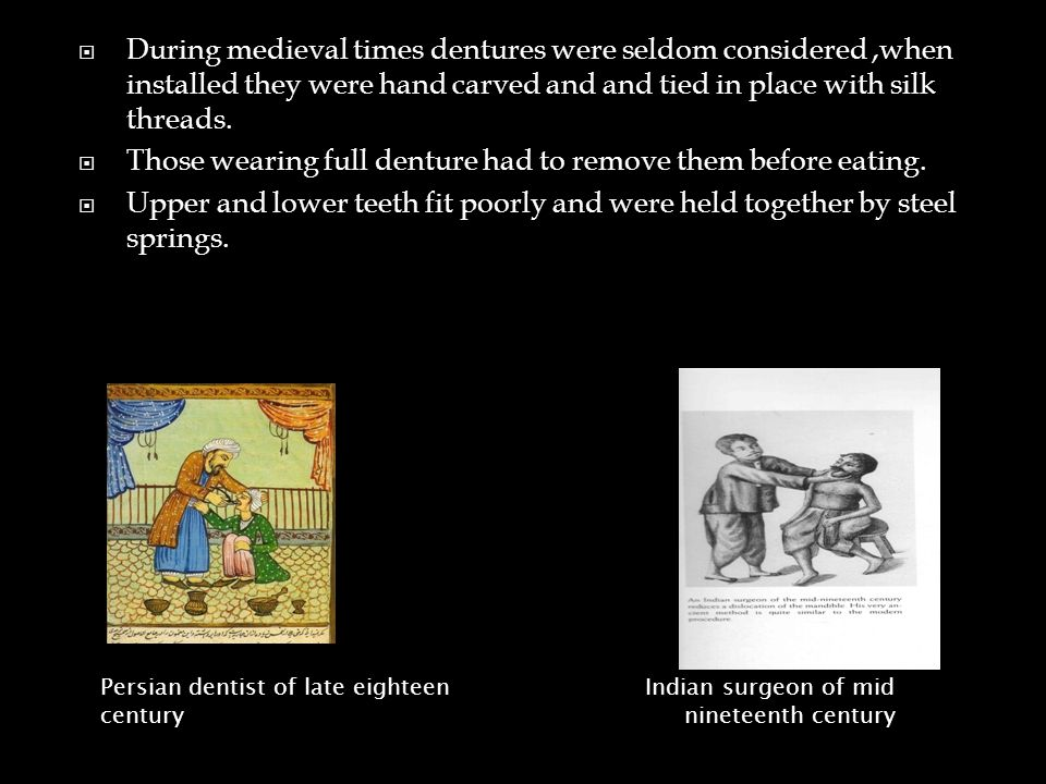  During medieval times dentures were seldom considered,when installed they were hand carved and and tied in place with silk threads.