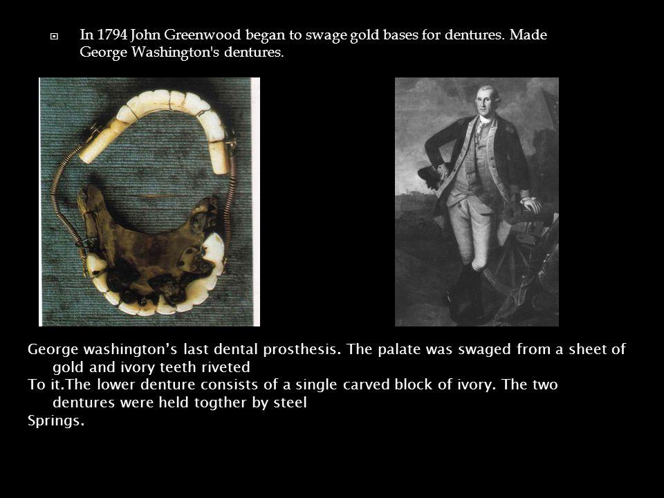  In 1794 John Greenwood began to swage gold bases for dentures.