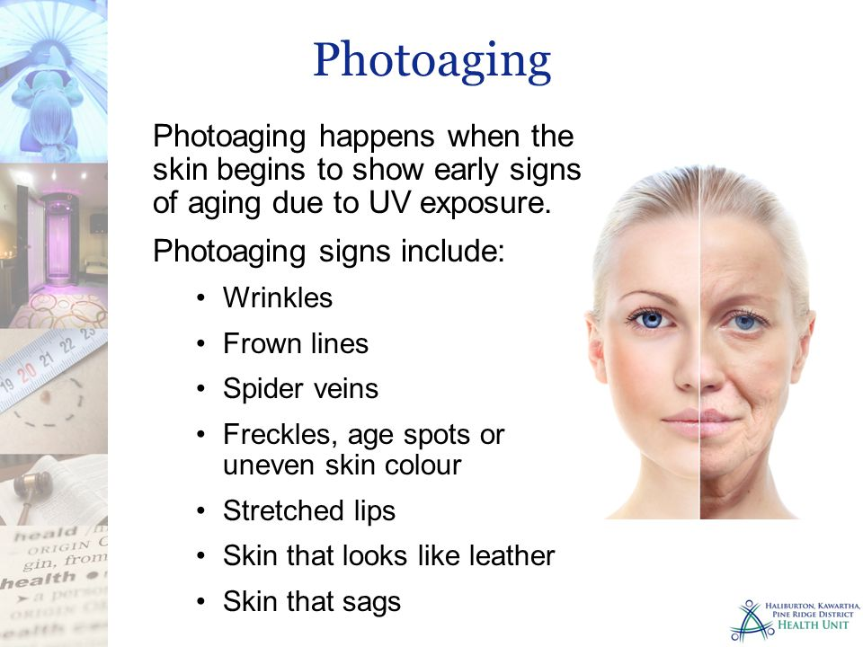 Photoaging happens when the skin begins to show early signs of aging due to UV exposure. Photoaging signs include: Wrinkles Frown lines Spider veins F