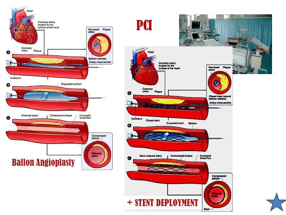 PCI Ballon Angioplasty + STENT DEPLOYMENT