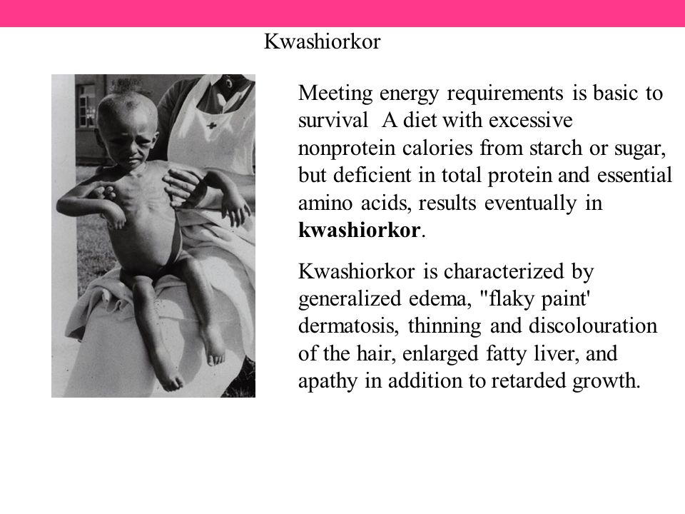 Kwashiorkor Meeting energy requirements is basic to survival A diet with excessive nonprotein calories from starch or sugar, but deficient in total protein and essential amino acids, results eventually in kwashiorkor.