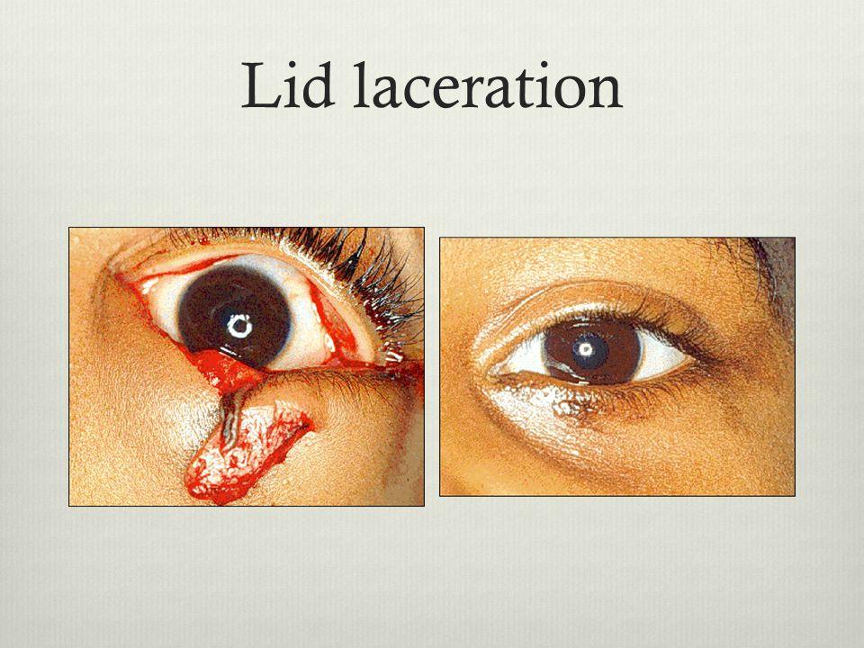 Lid laceration