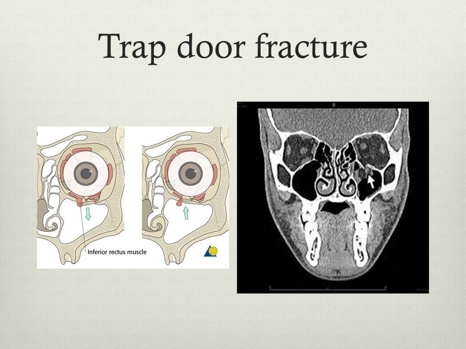 Trap door fracture