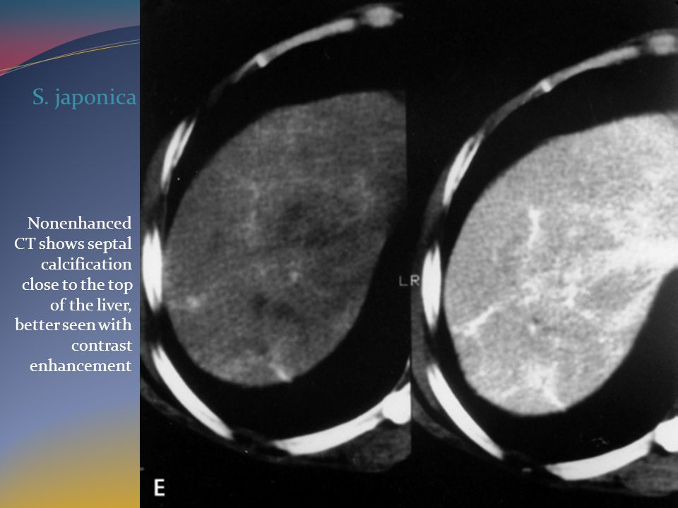 Nonenhanced CT shows septal calcification close to the top of the liver, better seen with contrast enhancement S.