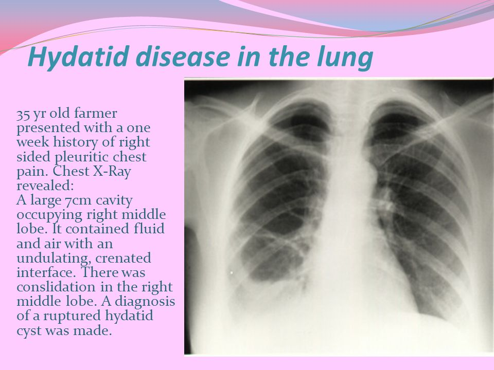 Hydatid disease in the lung 35 yr old farmer presented with a one week history of right sided pleuritic chest pain.