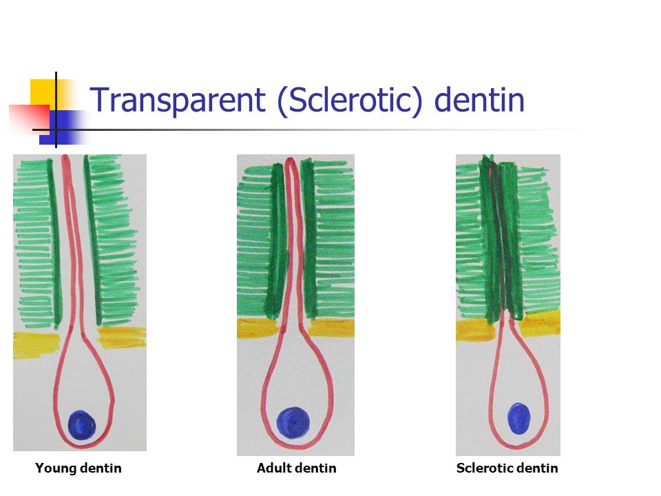 Transparent (Sclerotic) dentin Young dentinAdult dentinSclerotic dentin