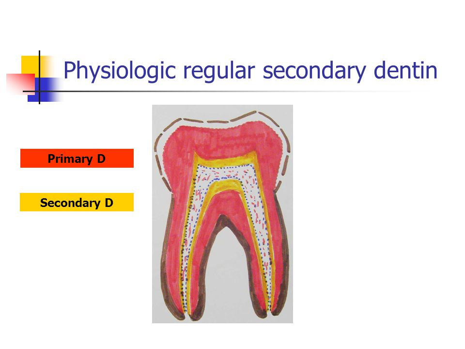 Physiologic regular secondary dentin Secondary D Primary D