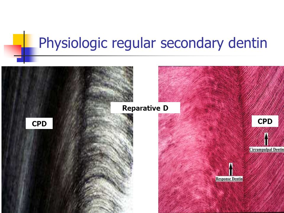 Physiologic regular secondary dentin The size of the pulp cavity decreases and obliteration of the pulp horns The course of the dentin canals is more irregular