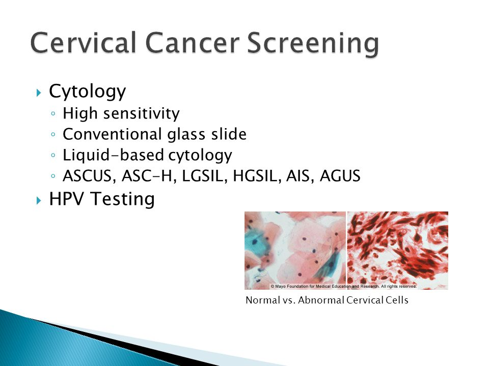  Histology: Colposcopy ◦ Visual examination ◦ Biopsy ◦ High specificity ◦ CIN-1, 2, or 3; Cancer  Excisional Procedures ◦ Loop Electrosurgical Excision Procedure (LEEP) ◦ Cold cone excision LEEP