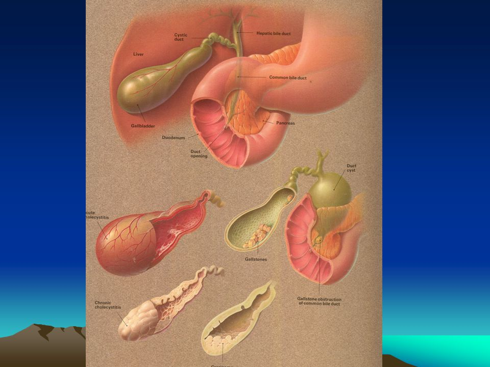 Gastric distention Gastric distention results in changes in the function of the pancreas, gallbladder and sphincter of Oddi.