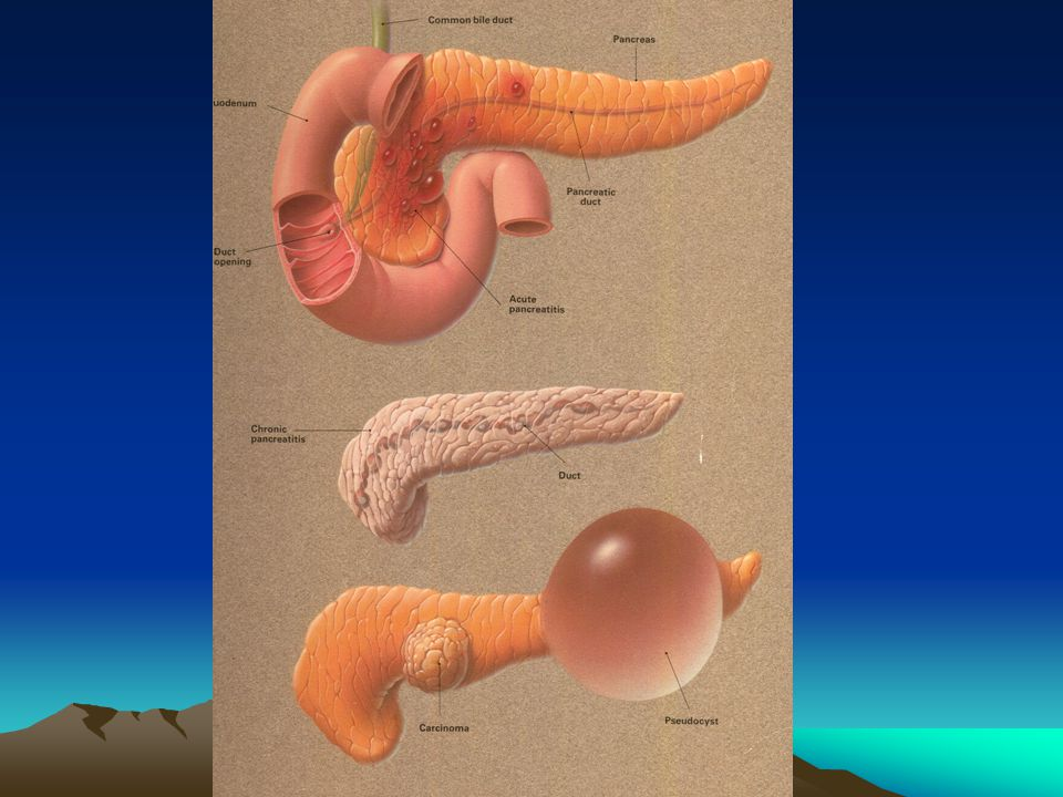 3 Enterokinase in duodenum The enzymes that produces activation is physically separated from the pancreas.
