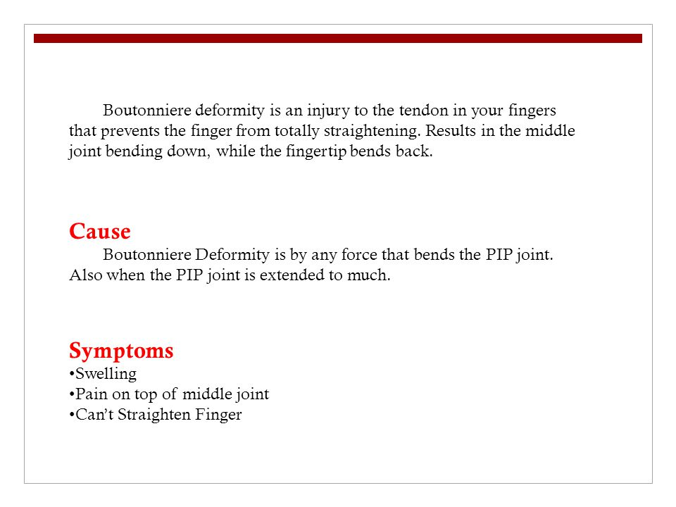 Cause Boutonniere Deformity is by any force that bends the PIP joint.