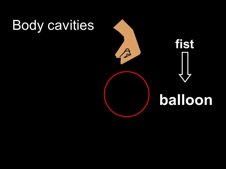 Body cavities fist balloon