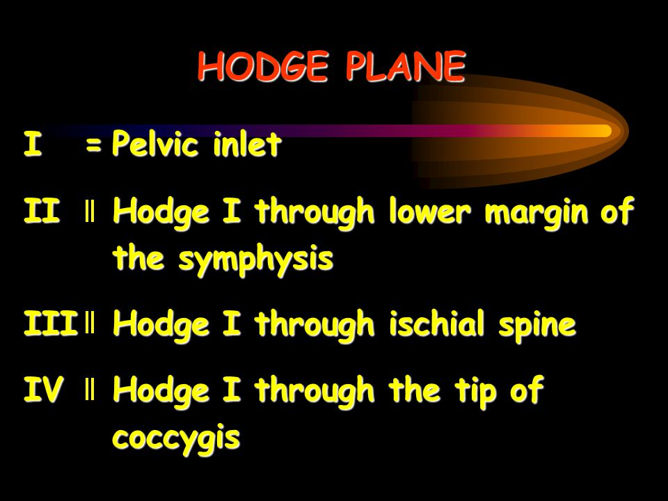 HODGE PLANE I =Pelvic inlet II Hodge I through lower margin of the symphysis III Hodge I through ischial spine IV Hodge I through the tip of coccygis