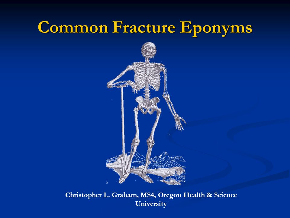 Common Fracture Eponyms Christopher L. Graham, MS4, Oregon Health & Science University