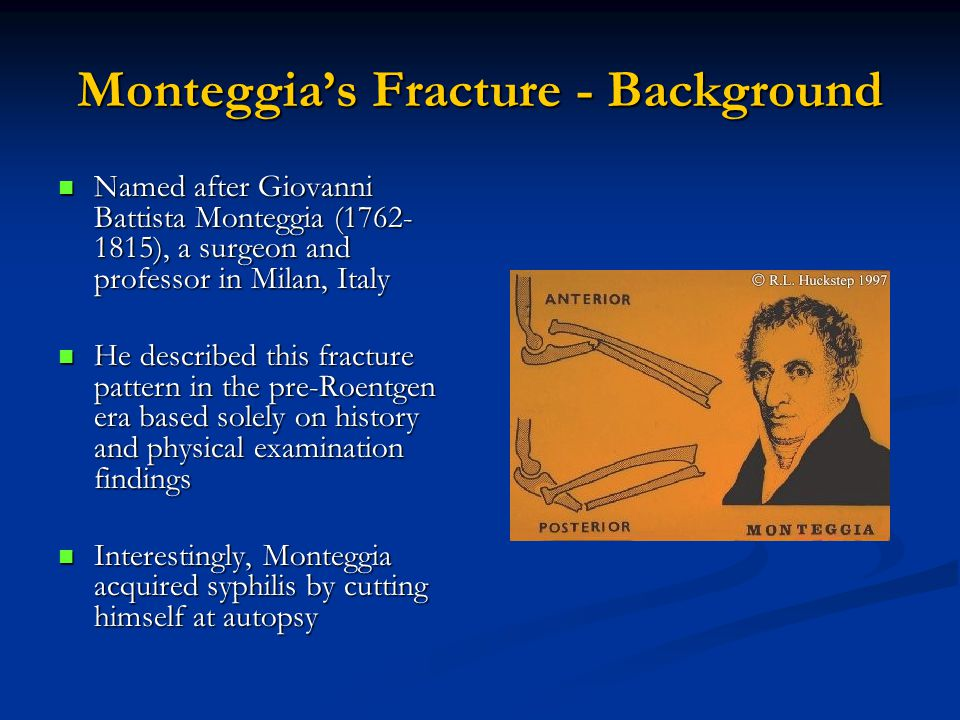 Monteggia's Fracture - Background Named after Giovanni Battista Monteggia (1762- 1815), a surgeon and professor in Milan, Italy Named after Giovanni Battista Monteggia (1762- 1815), a surgeon and professor in Milan, Italy He described this fracture pattern in the pre-Roentgen era based solely on history and physical examination findings He described this fracture pattern in the pre-Roentgen era based solely on history and physical examination findings Interestingly, Monteggia acquired syphilis by cutting himself at autopsy Interestingly, Monteggia acquired syphilis by cutting himself at autopsy