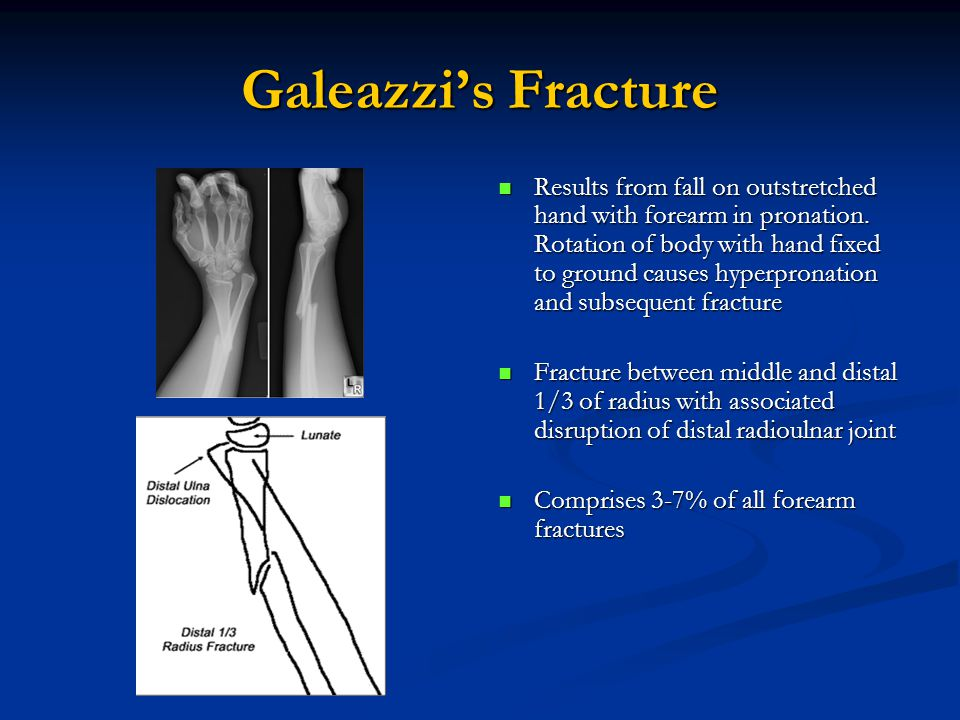 Galeazzi's Fracture Results from fall on outstretched hand with forearm in pronation.