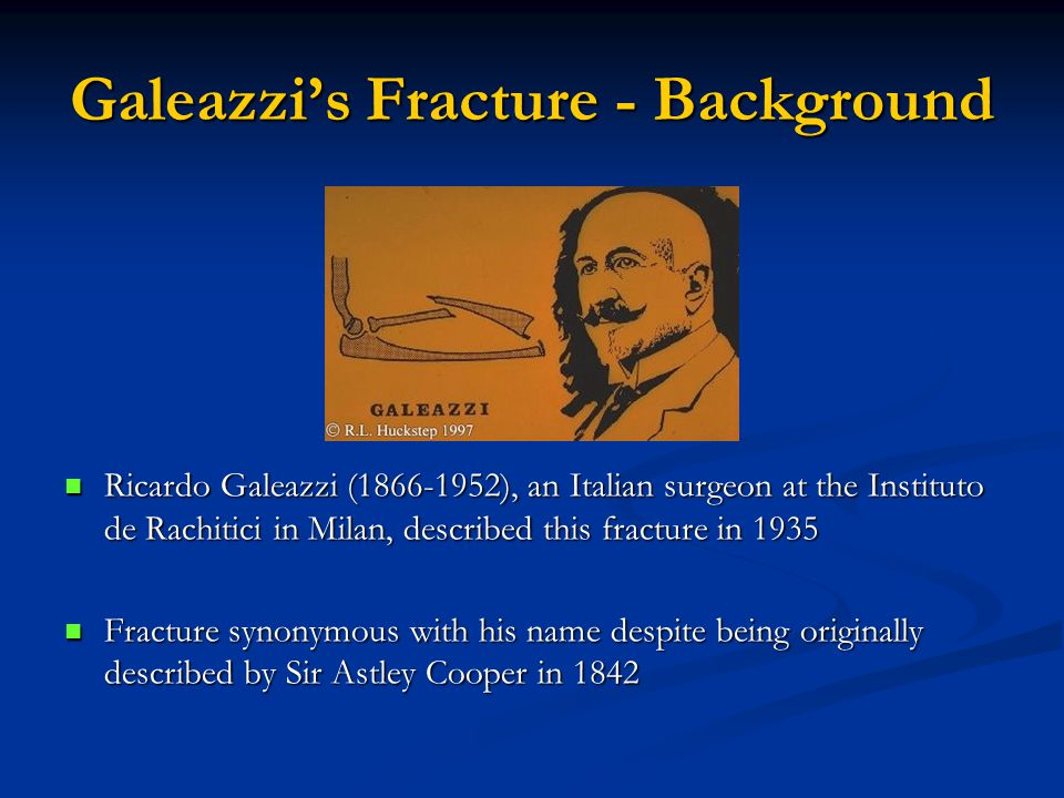 Galeazzi's Fracture - Background Ricardo Galeazzi (1866-1952), an Italian surgeon at the Instituto de Rachitici in Milan, described this fracture in 1935 Fracture synonymous with his name despite being originally described by Sir Astley Cooper in 1842
