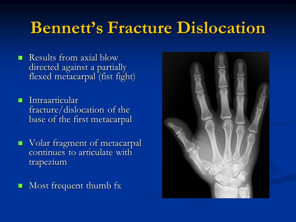 Bennett's Fracture Dislocation Results from axial blow directed against a partially flexed metacarpal (fist fight) Results from axial blow directed against a partially flexed metacarpal (fist fight) Intraarticular fracture/dislocation of the base of the first metacarpal Intraarticular fracture/dislocation of the base of the first metacarpal Volar fragment of metacarpal continues to articulate with trapezium Volar fragment of metacarpal continues to articulate with trapezium Most frequent thumb fx Most frequent thumb fx