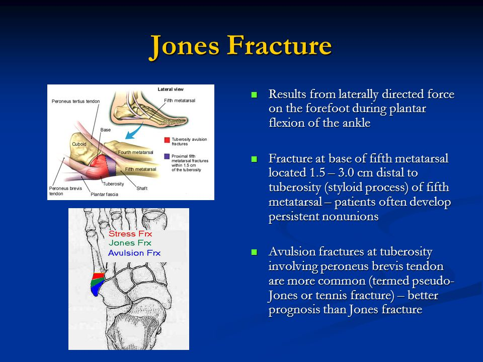 Jones Fracture Results from laterally directed force on the forefoot during plantar flexion of the ankle Fracture at base of fifth metatarsal located 1.5 – 3.0 cm distal to tuberosity (styloid process) of fifth metatarsal – patients often develop persistent nonunions Avulsion fractures at tuberosity involving peroneus brevis tendon are more common (termed pseudo- Jones or tennis fracture) – better prognosis than Jones fracture