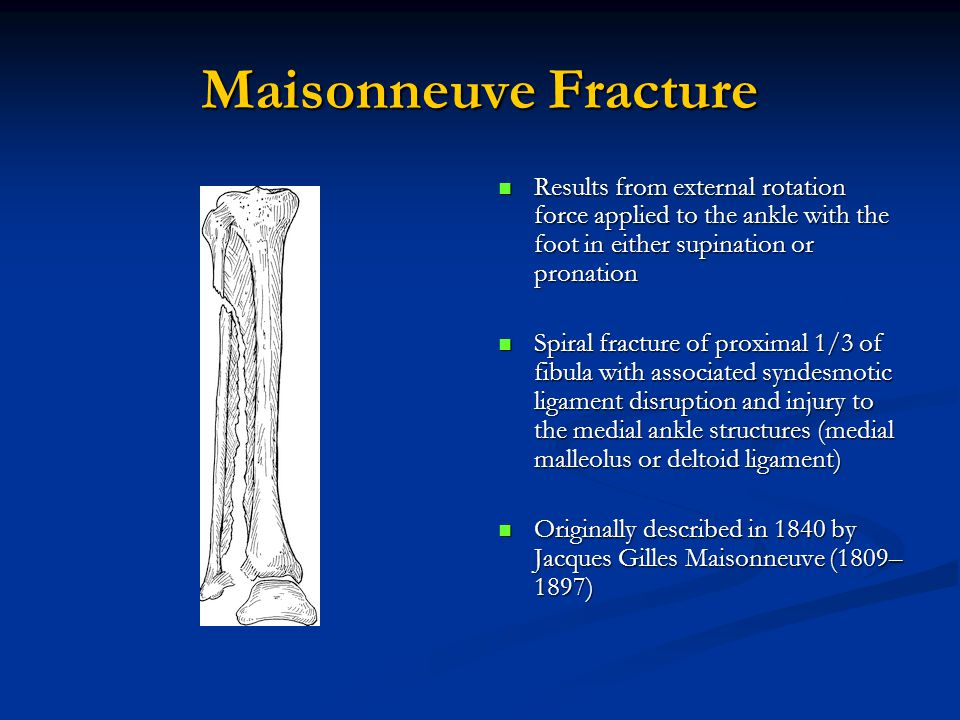 Maisonneuve Fracture Results from external rotation force applied to the ankle with the foot in either supination or pronation Spiral fracture of proximal 1/3 of fibula with associated syndesmotic ligament disruption and injury to the medial ankle structures (medial malleolus or deltoid ligament) Originally described in 1840 by Jacques Gilles Maisonneuve (1809– 1897)