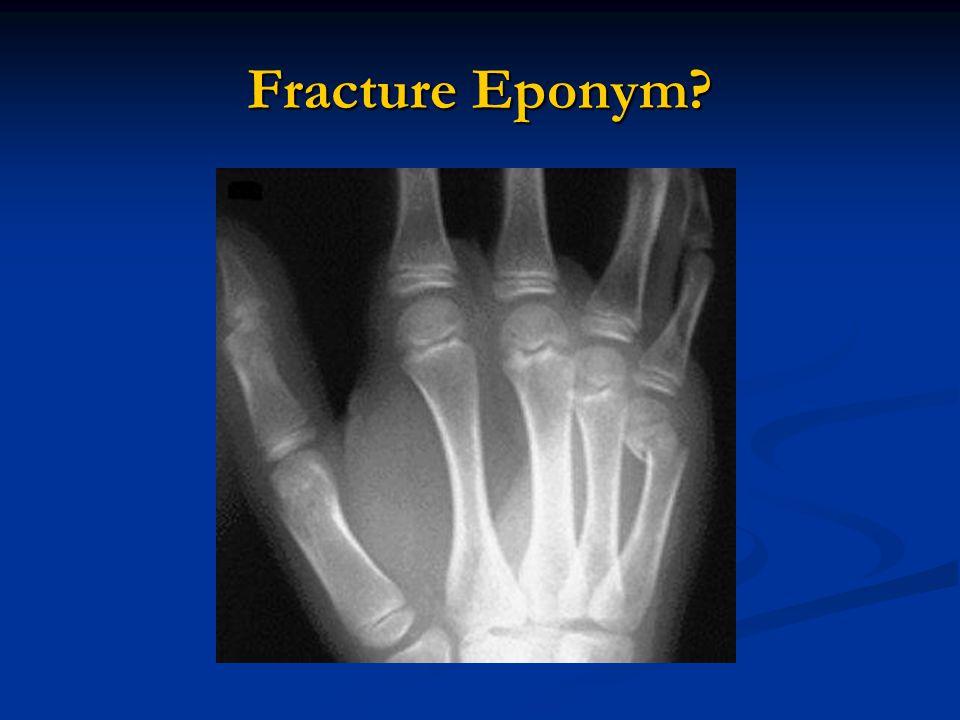 Fracture Eponym?