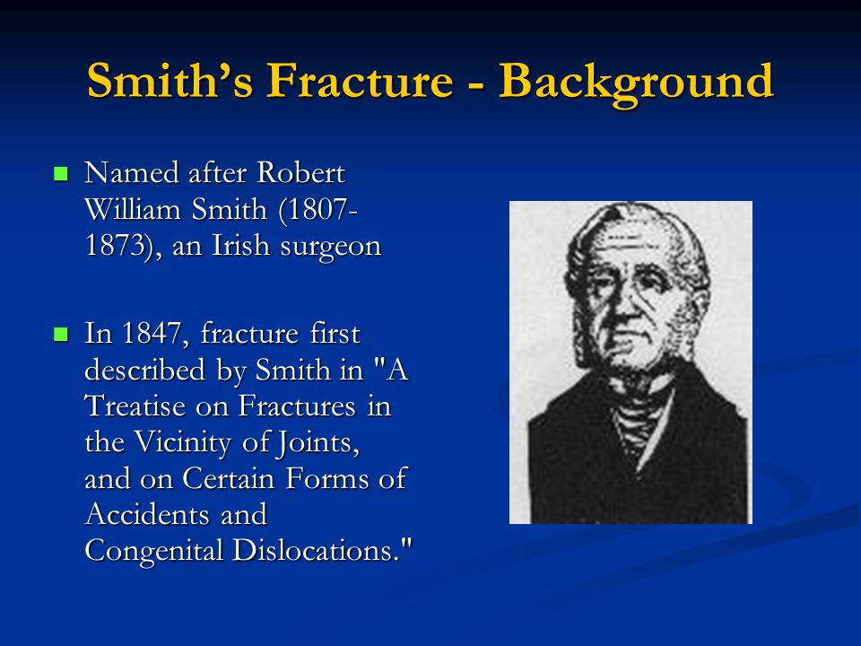 Smith's Fracture - Background Named after Robert William Smith (1807- 1873), an Irish surgeon Named after Robert William Smith (1807- 1873), an Irish