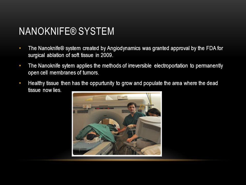 NANOKNIFE® SYSTEM The Nanoknife® system created by Angiodynamics was granted approval by the FDA for surgical ablation of soft tissue in 2009.