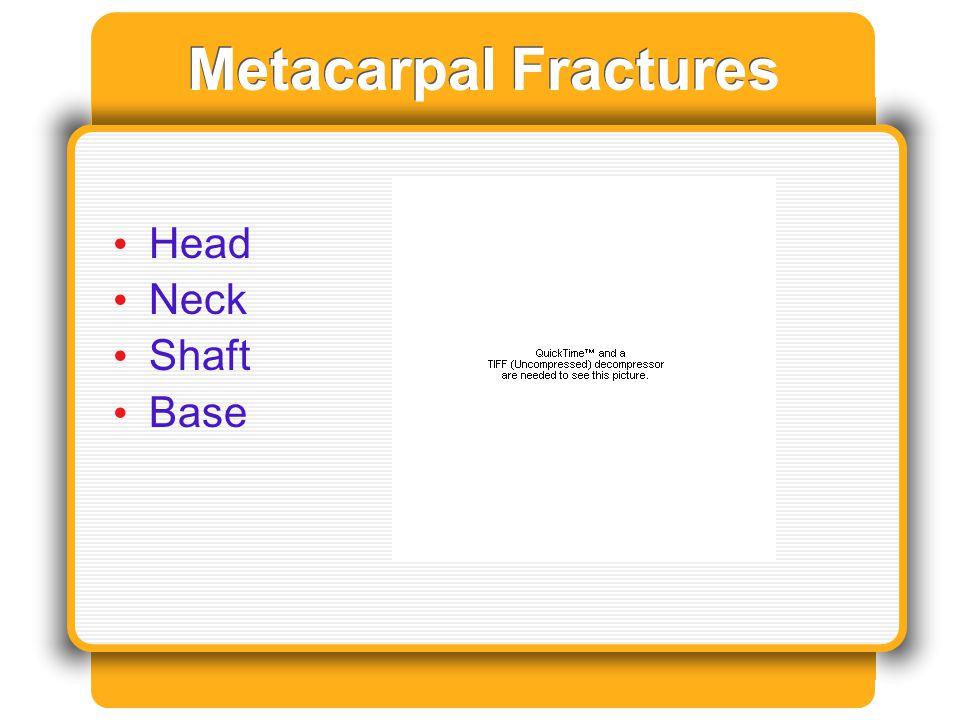 Metacarpal Fractures Head Neck Shaft Base