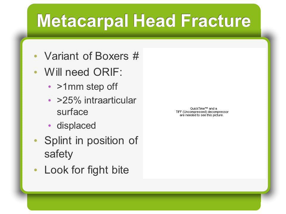 Metacarpal Head Fracture Variant of Boxers # Will need ORIF: >1mm step off >25% intraarticular surface displaced Splint in position of safety Look for