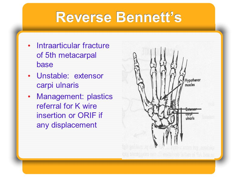 Reverse Bennett's Intraarticular fracture of 5th metacarpal base Unstable: extensor carpi ulnaris Management: plastics referral for K wire insertion o