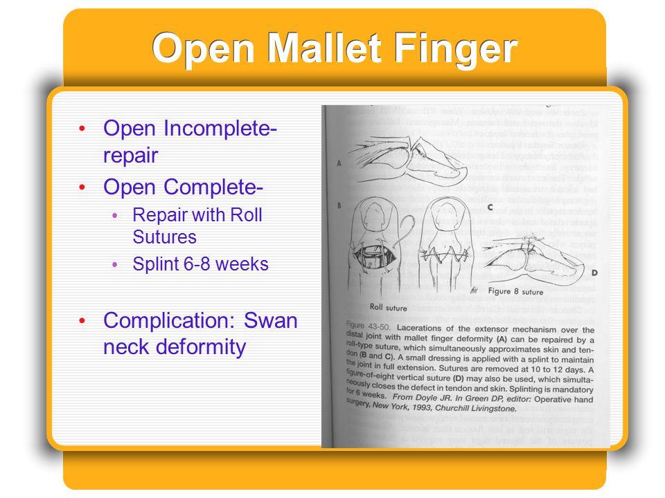 Open Mallet Finger Open Incomplete- repair Open Complete- Repair with Roll Sutures Splint 6-8 weeks Complication: Swan neck deformity