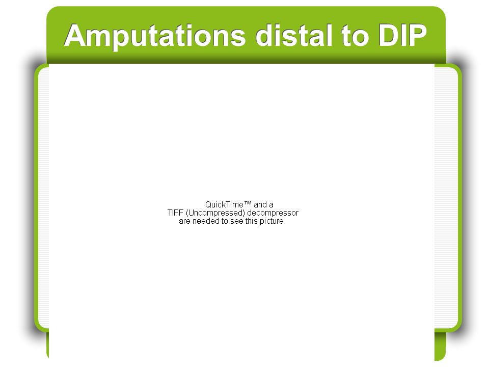 Amputations distal to DIP